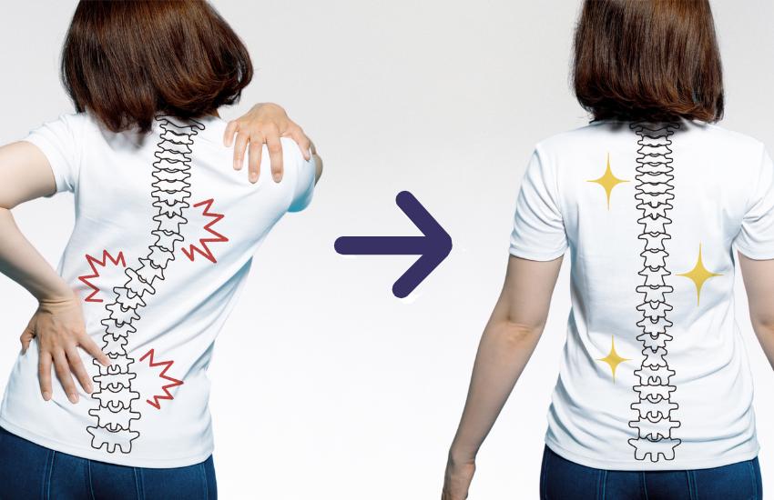 tratamiento de la escoliosis con reeducación postural global en la clínica j.j. boscà valencia