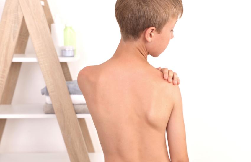 Tratamiento escoliosis rpg para intentar evitar la cirugía o corsé