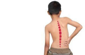 Corregir escoliosis con rpg fisioterapia reeducación postural global