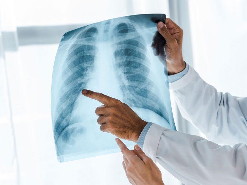 Radiología rx para diagnóstico en tavernes de la valldigna